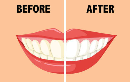 yellow teeth: Before and after brushing teeth illustration Illustration