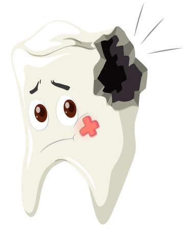 dientes sanos: La caries dental con cara triste ilustración