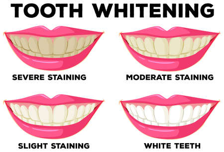 smiles teeth: Process of tooth whitening illustration