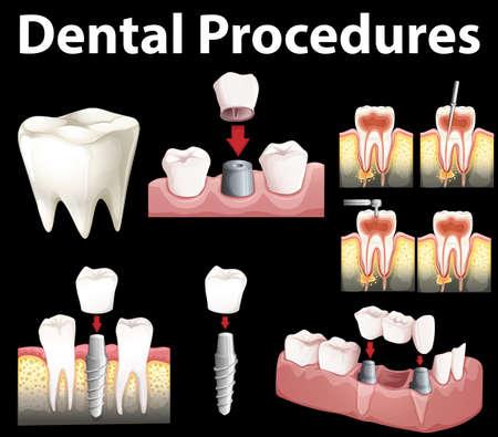 procedures: Dentale procedures of making fake tooth illustration