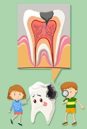 medical student: Boy and girl with tooth decay diagram illustration