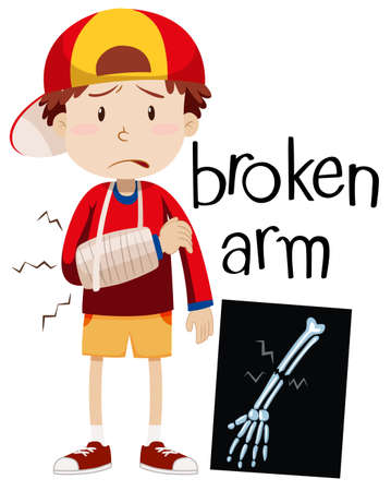 accidents: Boy with broken bone and x-ray illustration Illustration