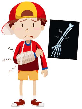 x ray image: Sad boy with broken arm illustration Illustration