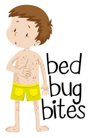 healthy kid: Boy having bed bug bites illustration