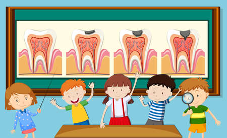 child girl: Children and tooth decay diagram illustration