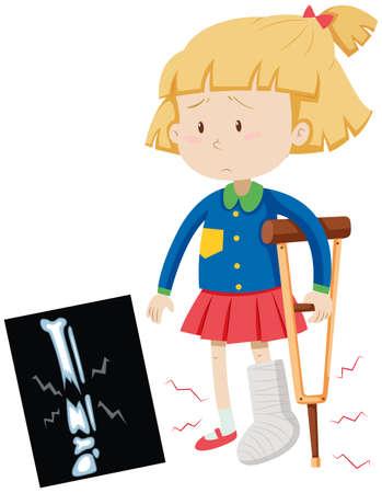 x ray image: Little girl with broken leg illustration Illustration