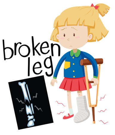 x ray image: Girl with broken leg and x-ray film illustration Illustration