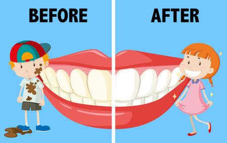before: Opposite words before and after illustration