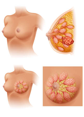 breast: Diagram of woman having breast cancer illustration Illustration