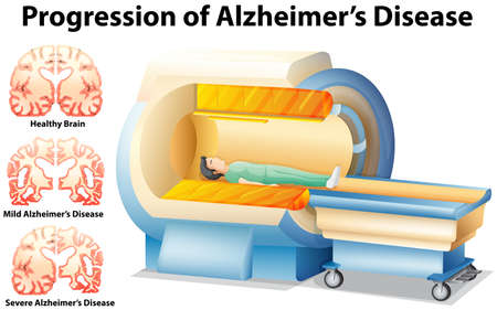 alzheimer's: Progression of Alzheimers Disease illustration