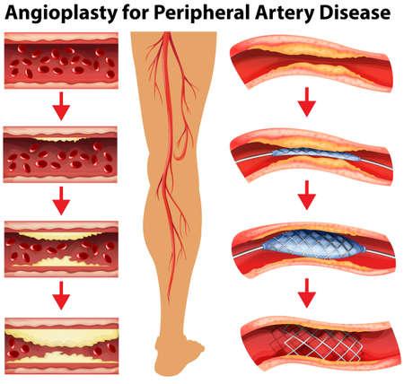 말초 동맥 질환의 그림도 보여 혈관 성형술 일러스트
