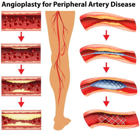 Diagram showing angioplasty for peripheral artery disease illustration Vettoriali