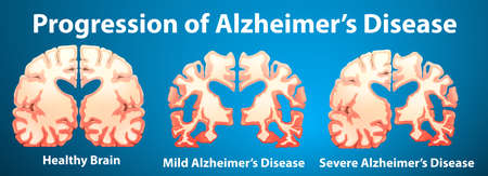 alzheimer's: Progression of Alzheimers disease on blue background illustration Illustration