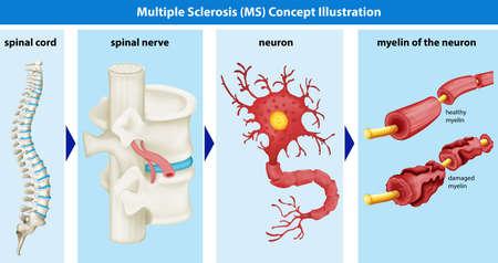 Diagram showing multiple sclerosis concept illustration Stock Illustratie