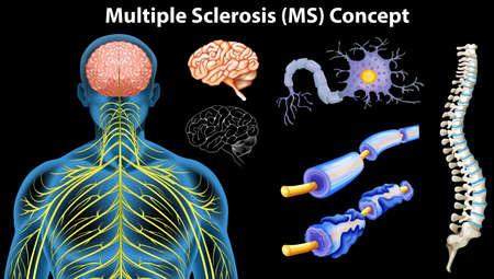 multiple sclerosis: Diagram showing multiple sclerosis concept illustration Illustration