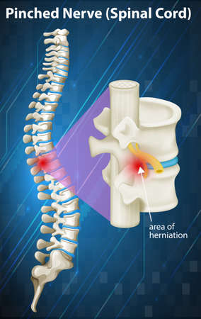 pinched: Diagram of pinched nerve at spinal cord illustration