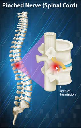 medula espinal: Diagrama del nervio pellizcado en la ilustración de la médula espinal