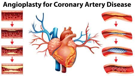 Diagramma che mostra angioplastica per malattia coronarica illustrazione