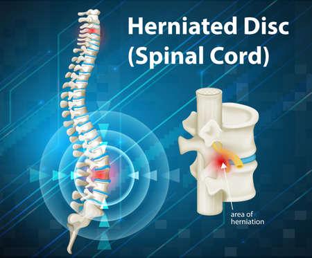 herniated 디스크 그림을 보여주는 다이어그램 일러스트