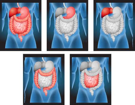 digestive disease: X-ray films of human organs illustration Illustration