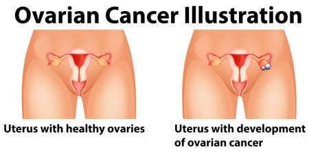 female reproductive organs: Diagram showing ovarian cancer in human illustration