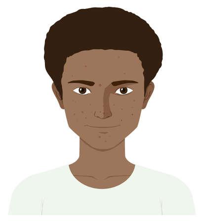 zit: Teenage boy with skin problem illustration Illustration