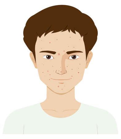 Mann mit Hautproblem Illustration Vektorgrafik