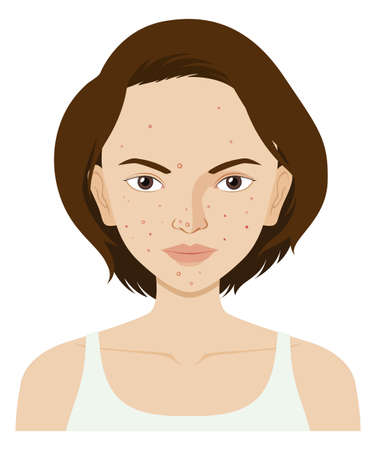 Woman face with pimples illustration