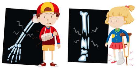 huesos: Niño y niña con los huesos rotos ilustración