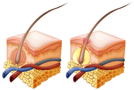 Diagram showing hair and under human skin illustration