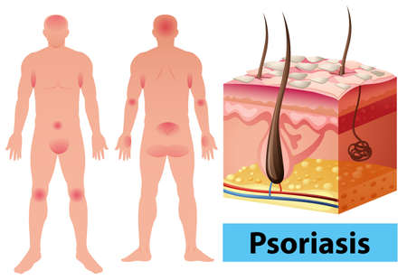Diagram showing psoriasis in human illustration