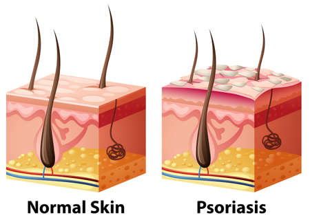 Human skin diagram with normal and psoriasis illustration 版權商用圖片 - 77495218