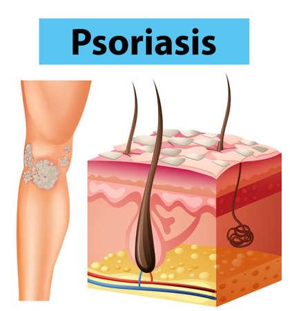 medical illustration: Diagram showing psoriasis on human skin illustration Illustration