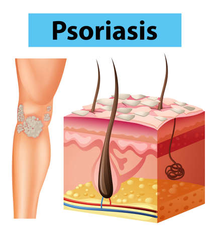 Diagram showing psoriasis on human skin illustration Illustration
