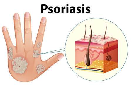 Diagram showing psoriasis on human hand illustration