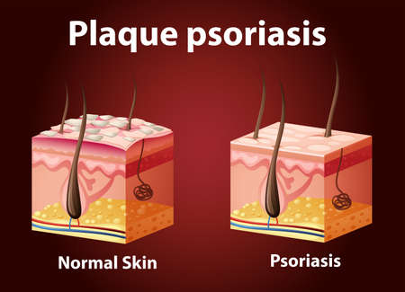Diagram showing plaque psoriasis illustration