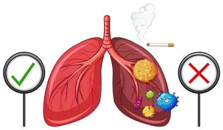 Diagram showing healthy and unhealthy lungs illustration Illustration