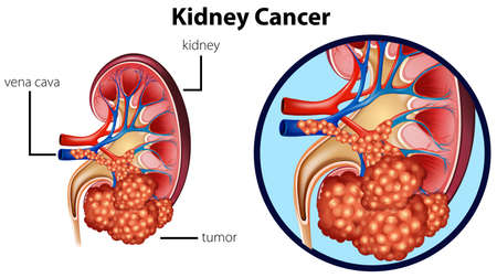 Diagram showing kidney cancer illustration