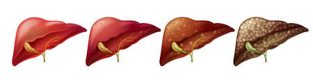 Different stages of human liver illustration