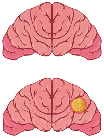 Human brain with cancer illustration