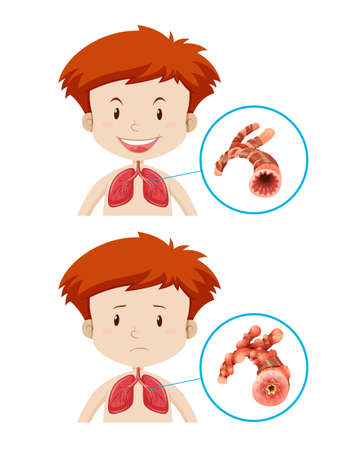 Boys with healthy and unhealthy lungs illustration