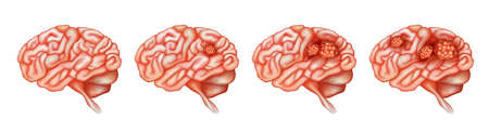 Different stages of cancer in brain illustration