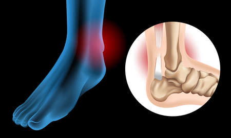 Diagram showing Chronic Achilles tendon tear illustration 矢量图像