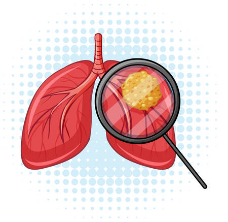 Cancer in human lungs illustration