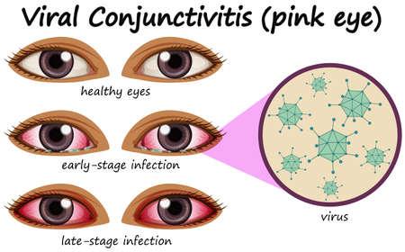 Human eye disease with viral conjunctivitis illustration