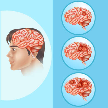 Diagram showing brain cancer in human illustration