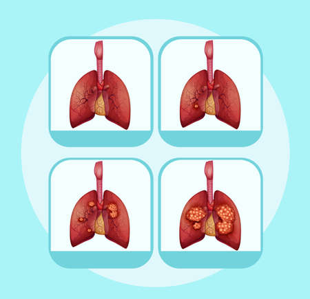 Diagram showing different stages of lung cancer illustration Stock Illustratie
