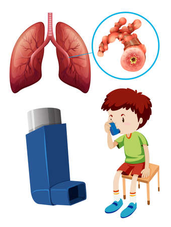 Boy with unhealthy lungs illustration