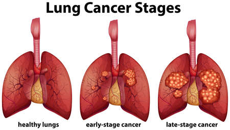 Diagram showing lung cancer stages illustration