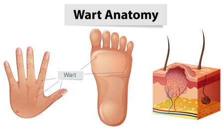 Human Anatomy Wart on Hand and Foot Vector illustration.
